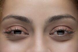 Ojos rojos o weed eyes